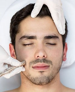 Microdermabrasion in Gilbert