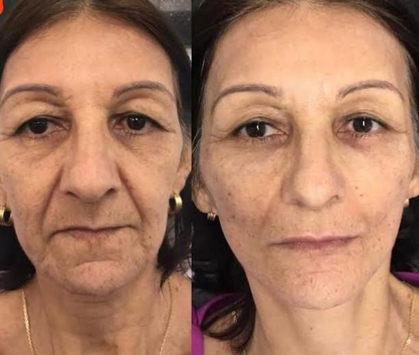 Glow Skin Treatment