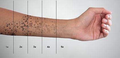 tattoo-removal.jpeg