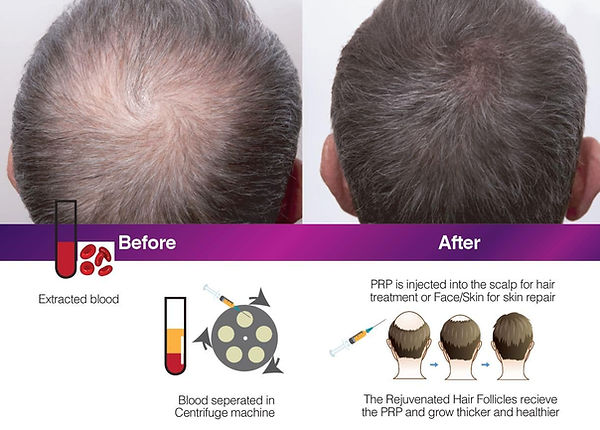 PRP-treatment-for-hair-loss-in-Sydney.jp