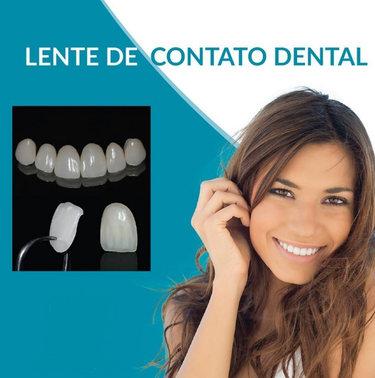 lentes dentais 2.jpg