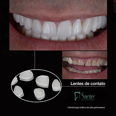 Lente de contato dental Juiz de Fora- Sa