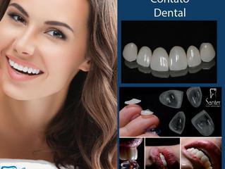 Lentes de contato dentais em Juiz de Fora: conheça o tratamento.