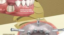 Implante Dentário guiado por computador: sem cortes, sem pontos.