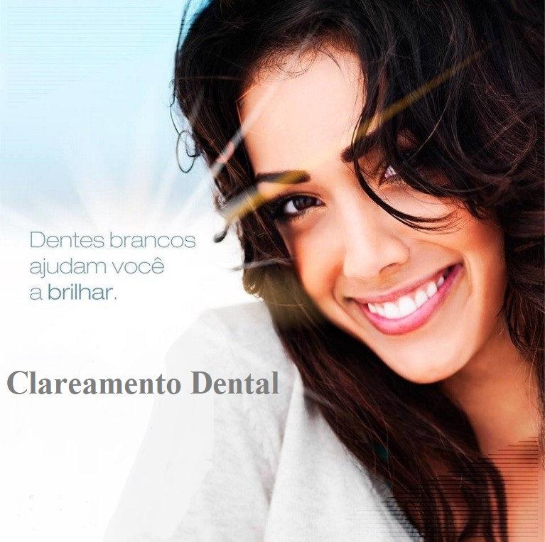 Clareamento Dental Juiz de Fora.jpg