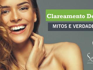 Mitos e verdades sobre clareamento dental.