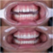 lente de contato dental Juiz de Fora