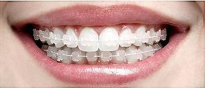 Aparelho de Porcelana JF, Aparelho Ortodôntico Juiz de Fora, Dentista JF, Clínica Odontológica JF