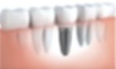 Implante Dental JF, Implante Dentário JF, Dentista JF, Clínica Odontológica JF.