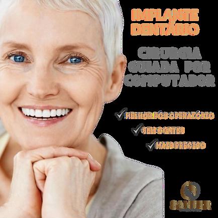 Implante_Dentário_Juiz_de_fora