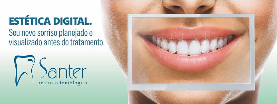 DSD Juiz de Fora , Dentista JF, Clínica Odontológica JF, Implante Dental JF
