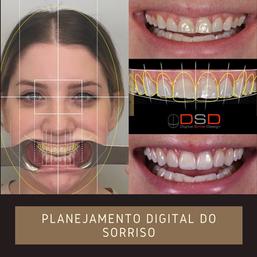 DSD- Santer.png