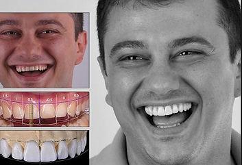 Digital Smile Design Juiz de Fora - Santer é pioneira em JF e região.