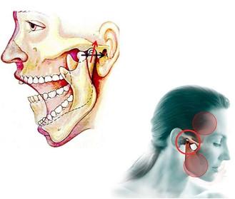 Problemas de la articulación témporo mandibular (ATM)