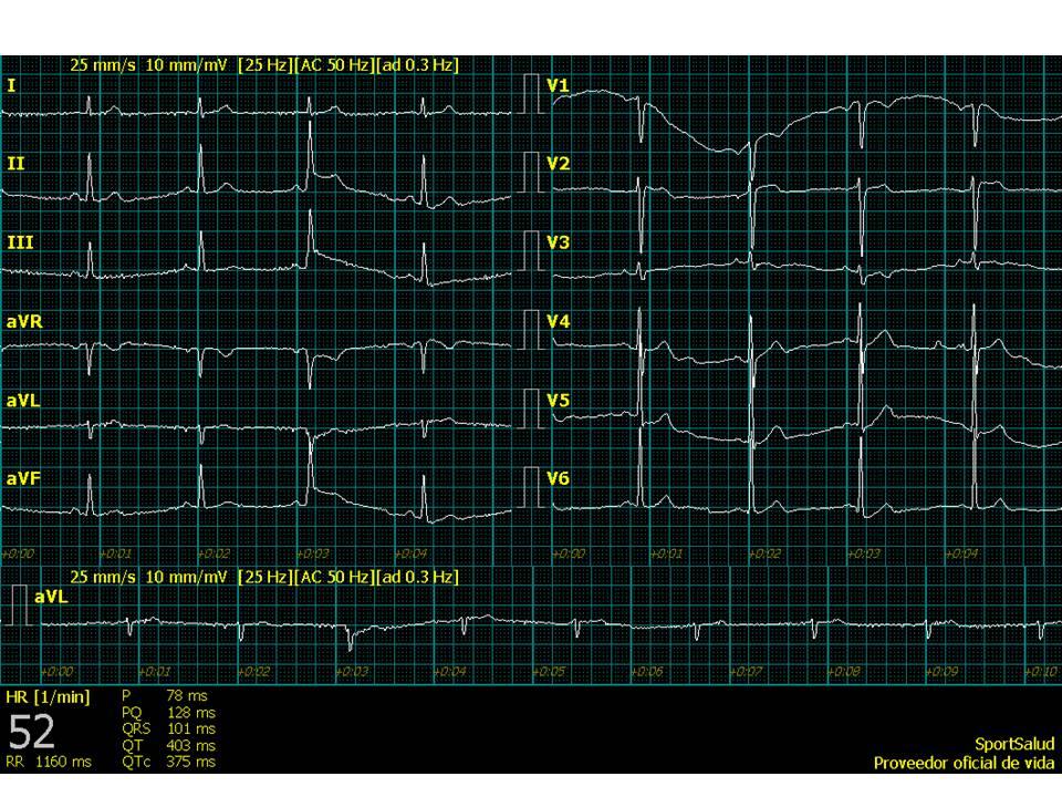Electrocardiograma-1