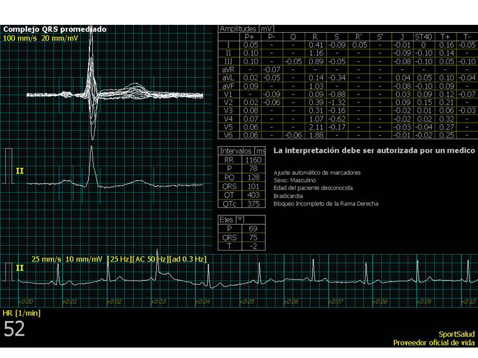 Electrocardiograma-2
