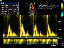 Doppler_pulsado_a_nivel_del_plano_mitral_Patrón_de_llenado_normal_de_ventrículo_izq