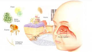 Decálogo de consejos para los padres del paciente con asma