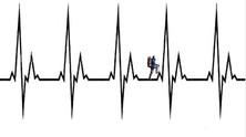 Valoración médico-deportiva en el deporte