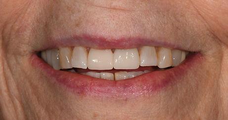 Smile%2520After_Edited_edited_edited.jpg