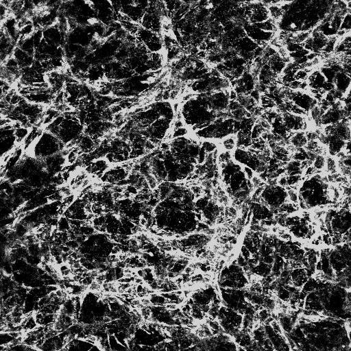 Cell-derived matrix (collagen lV) - Nikki Koudis