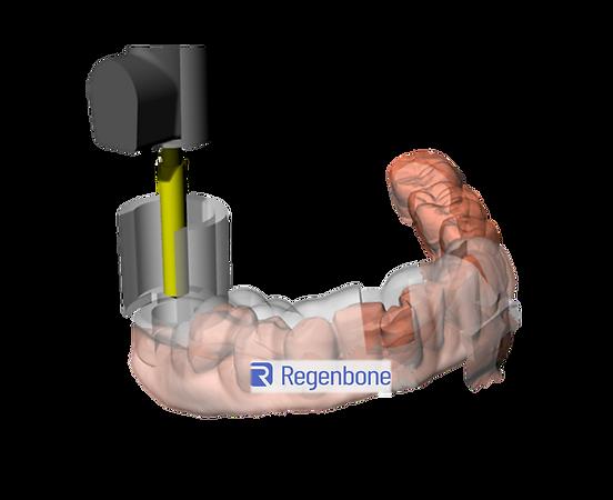 手術導板1_R.png