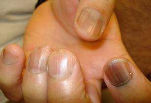 nail melanoma 2.jpg
