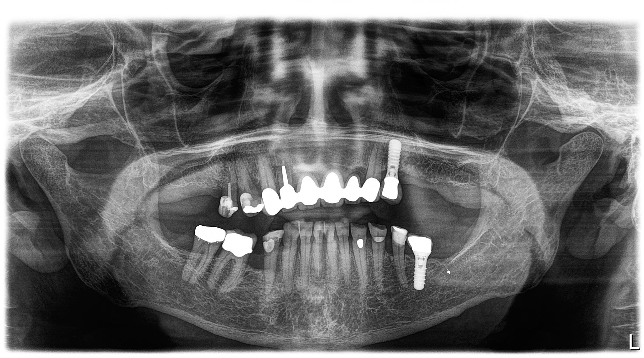 Orthophos SL 3D