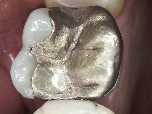 Amalgam Ersatz aus Keramik