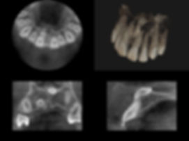 Aktuellen Generation von 3D Volumentomographie Geräten lassen sich dabei sehr hohe Auflösungen bei deutlich geringerer Strahlenbelastung gegenüber einem CT erzielen. Bis zu 80 Prozent Strahlungsreduktion sind möglich.