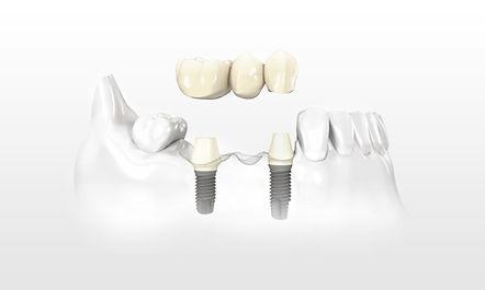 Ein Implantat ist eine künstliche Zahnwurzel aus Titan, die in den Kieferknochen gesetzt wird und als Pfeiler für den Zahnersatz dien