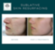 Acne scar treatmet. Safe, Effective. Affordable. Fort Worth, TX