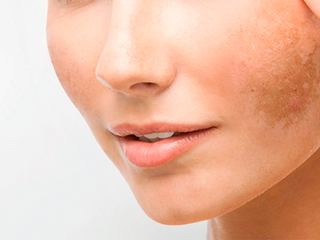 The Truth About Melasma