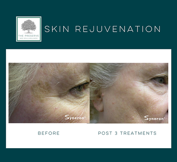 Reduce pigmentation, sun damage and age spots with photofacial Fort Worth medspa