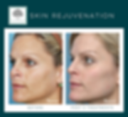 Reduce sun damage, pigmentation, age spots, brown spots, freckles and hyperpigmentation.
