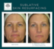 Affordabl skin resurfacing treatmet with minimum downtme in Fort Worth, TX