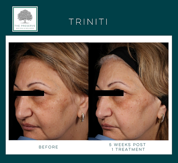 Triniti Elos Plus use light + radiofrequency to maximize resuls and reveal beautiful skin
