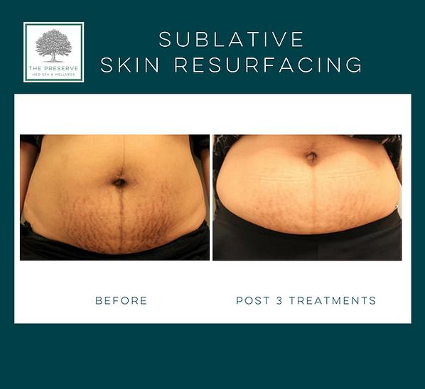 Stretchmark treatment with skin resurfacing Elos Plus Fort Worth, TX