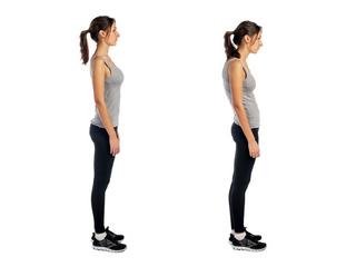Má postura pode ser responsável pela barriga saliente
