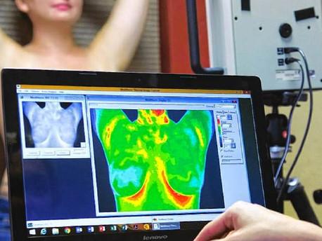 """Termografía: Detección de cáncer de mama""""Mejor evaluación de riesgos"""" (Republicado)"""