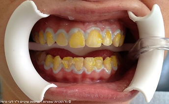 הלבנת שיניים בתל אביב