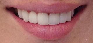 ציפוי חרסינה לשיניים לומיניירס