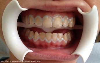 """הלבנת שיניים - ד""""ר ליבי כרמי"""