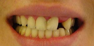 השלמת שיניים חסרות