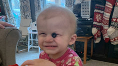 """2yr old Rubye Rose - """"Our little hero!"""""""