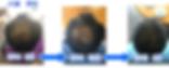 熊本市八王寺美容室ホワイトストーンのヘナ効果(熊本市男性モデルs様ヘナを使ったことで、育毛効果ありの写真)