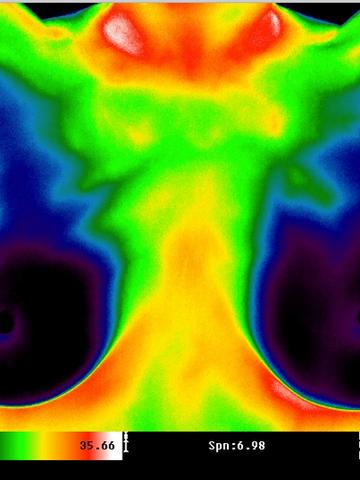 Sheri thermal imaging.png