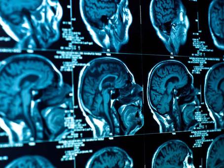 Estudia una especialidad médica en Neurología