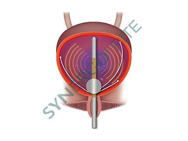Synergo ipertermia riscaldamento diretto delle pareti della vescica
