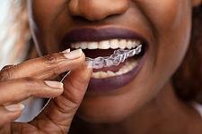 Invisalign - clear braces - in Warrenton, Va - in in Culpepper, VA